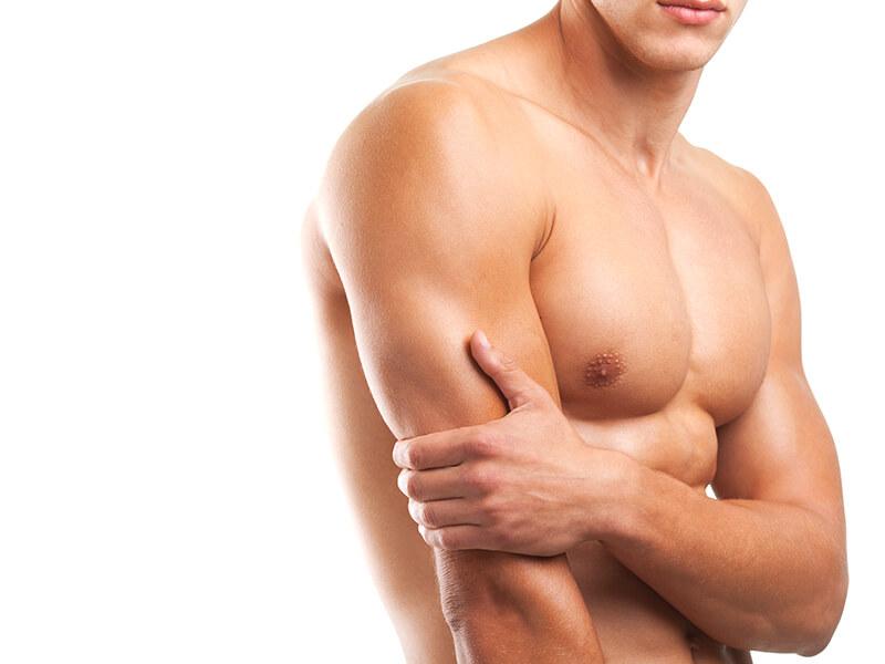 Reduktion af mandlig brystudvikling